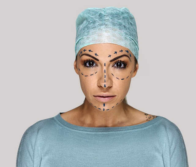 Dal chirurgo estetico l'IVA non si paga