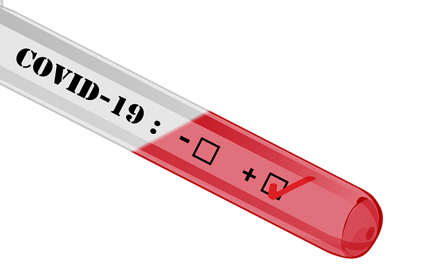 Emergenza Covid-19, sondaggio A.P.I.:  nelle PMI sempre più marcato il calo del fatturato e il ricorso alla cassa integrazione